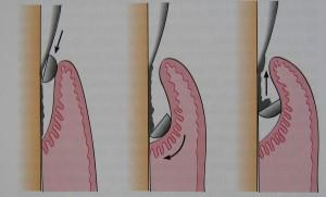 Operatiile parodontale